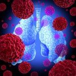 Driving Risk Factors Behind Ventilator-Associated Pneumonia