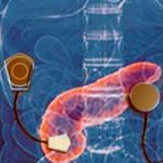 Artificial pancreas could save lives