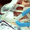 ICU ventilators overused among advanced-dementia patients