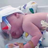 A Randomised Trial of High-flow Nasal Cannula in Infants with Moderate Bronchiolitis