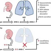 Angiotensin II in Post Cardiopulmonary Bypass Vasoplegia