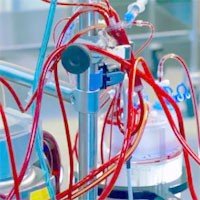 Consequences of Cardiopulmonary Bypass: What the Intensivist Needs to Know