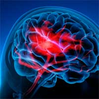 Increase in Rare Brain Inflammation and Stroke Linked to COVID-19