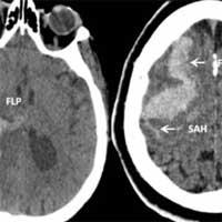 Intracerebral Hemorrhage (ICH)