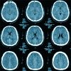 presenting-characteristics-associated-with-outcome-in-children-with-severe-tbi