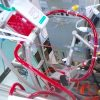 Sedation and Mobilization during Venovenous Extracorporeal Membrane Oxygenation for ARF