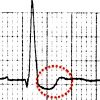 The Poor Man's Tox Screen: ECG Findings in the Acute Overdose