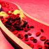 Testosterone VTE Risk; Novel Clot Buster Flops Again; Saturated Fat Culpability